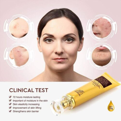 Acne Scar Remover And Repairer Cream