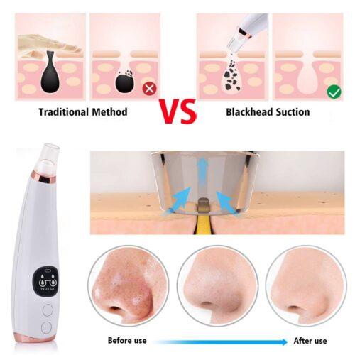 Nose Blackhead Remover