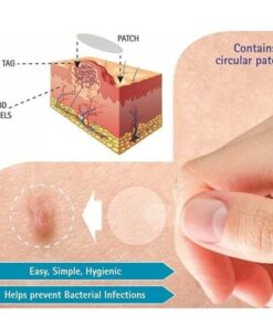 Skin Tag Remover Patch Ance Pimple Patch Plaster Acne Cream Hydrocolloid Master Anti infection Quick Absorb 2 Skin Tag Remover Patch Ance Pimple Patch Plaster