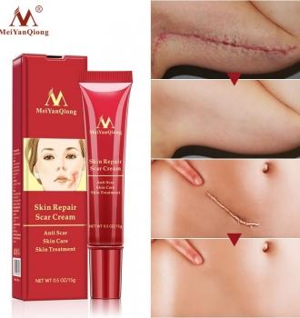 Acne Scar Removal Cream –  Maternity Repair Cream